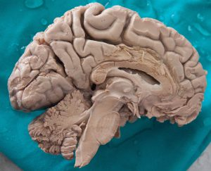 Human_Brain_Dissected