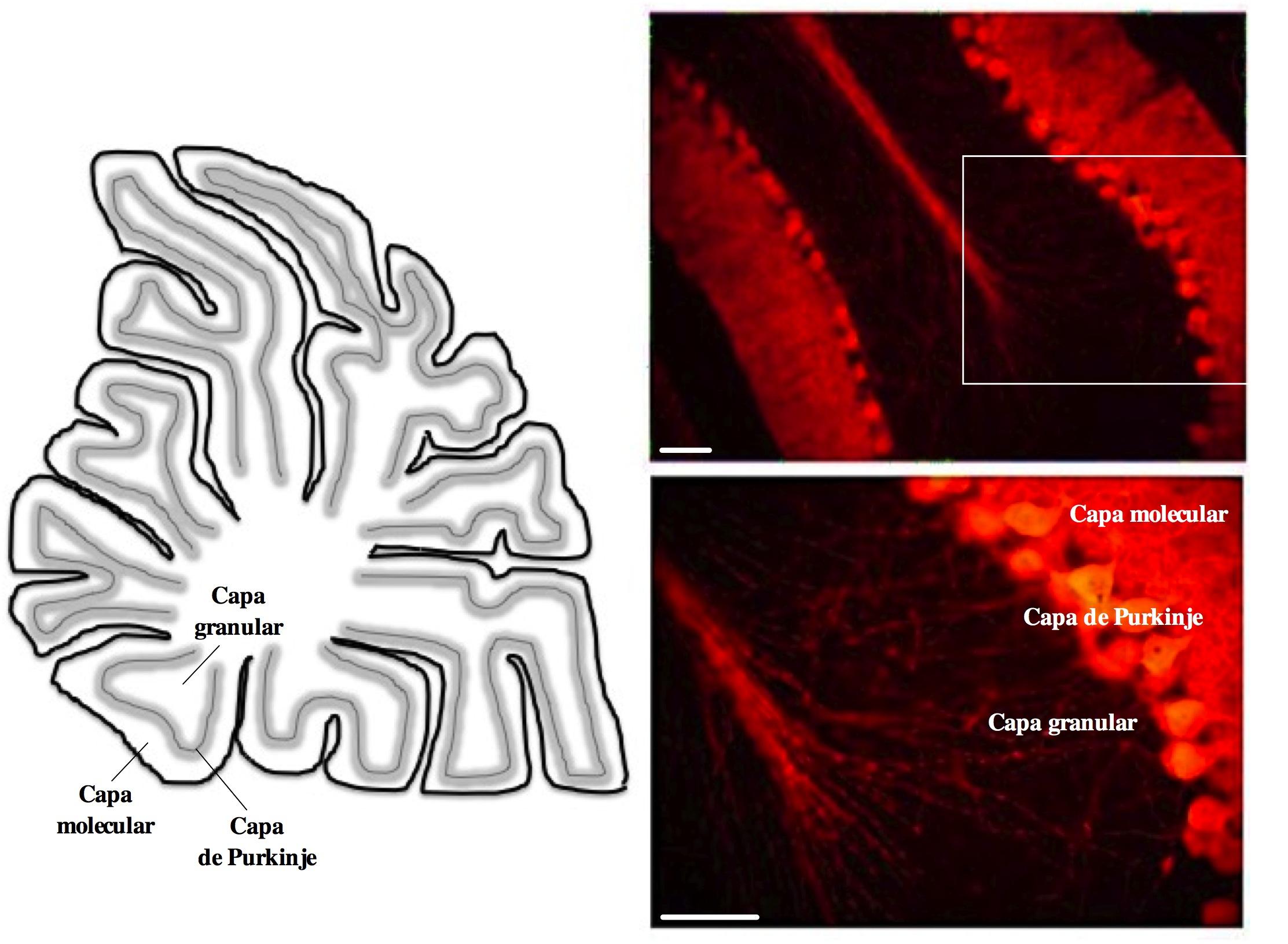 Epilepsia y cerebelo - Universidad Veracruzana